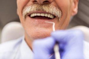 Dentures Boca Raton