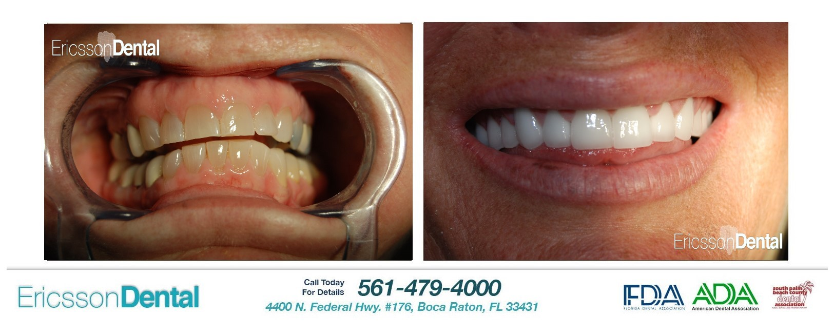 Emergency dentist boca raton